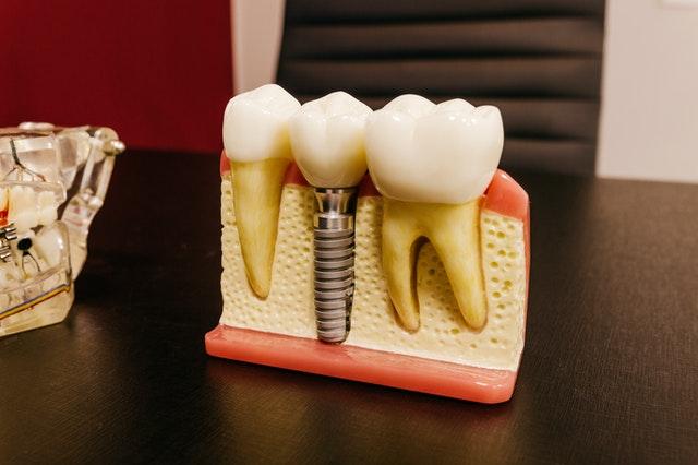 dental-implants-adelaide